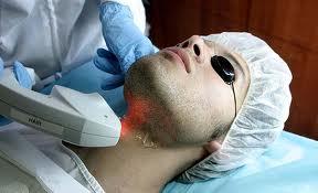 depilacion definitiva masculina